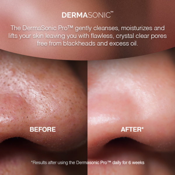 Ultrasonic Skin Scrubber Before & After